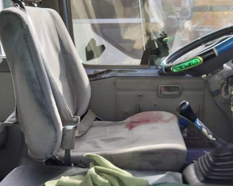 «Por ir peleando vía», conductor dispara contra «rapidito»; un menor resulta herido