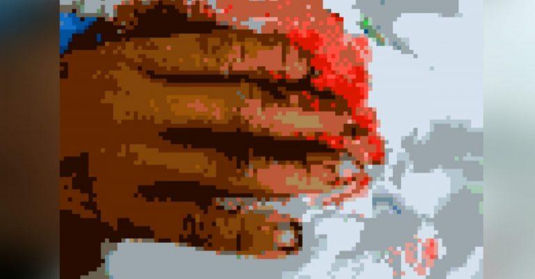 Cuarta víctima: niño pierde parte de tres dedos por estallido de mortero