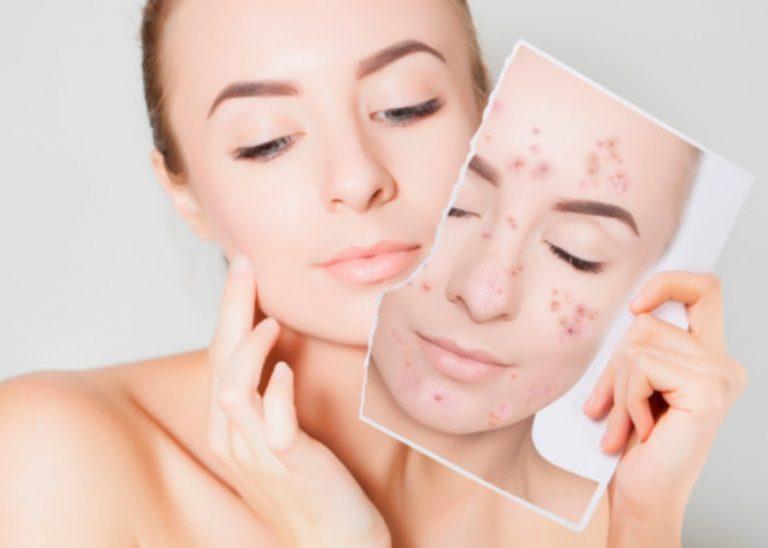 MUJERES| Seis remedios naturales para aclarar la piel y quitar las manchas