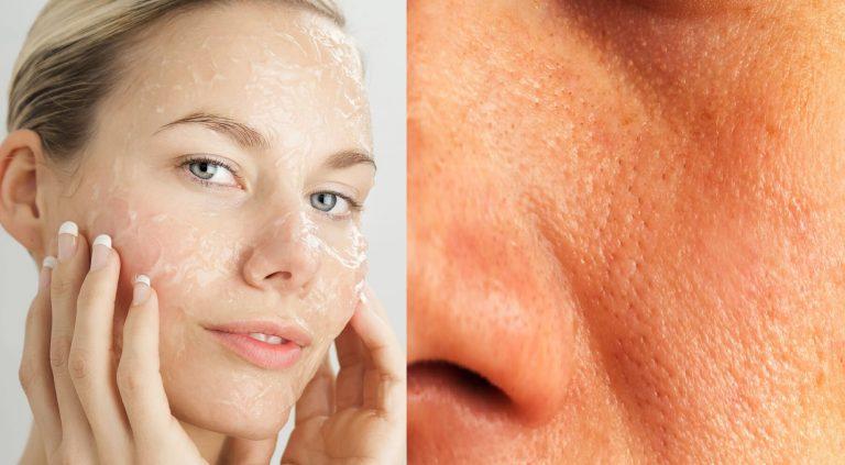 DE MUJERES  Conozca los mejores remedios para combatir los poros abiertos