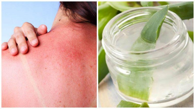 7 remedios caseros para tratar las quemaduras del Sol