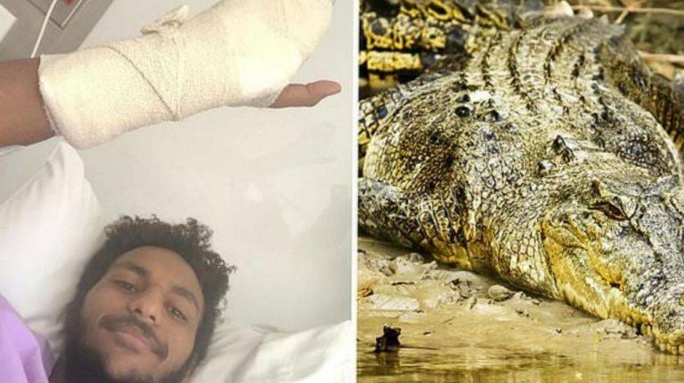 CURIOSAS  Joven sobrevive al ataque de un cocodrilo por un tutorial de YouTube