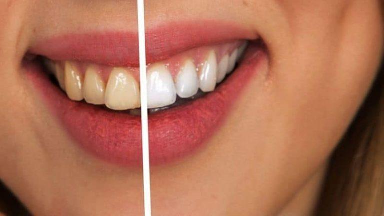 Manchas en los dientes: ¿Qué las provoca y cómo se pueden prevenir?