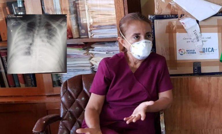 COVID-19: Neumóloga alerta que jóvenes llegan con «pulmones blancos»