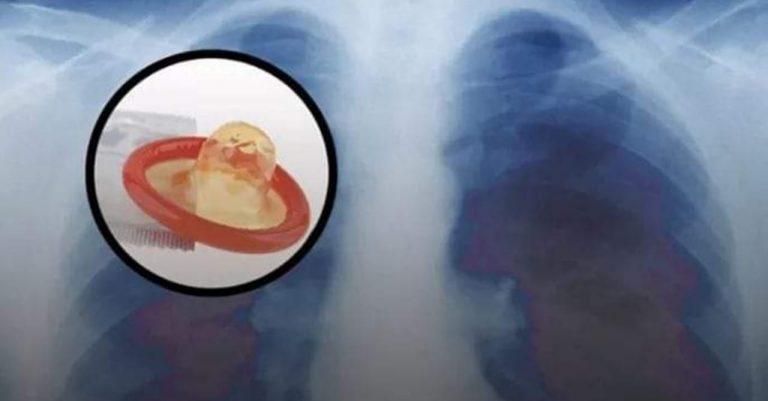 Curiosas| Creían que tenía tuberculosis, pero hallaron un condón en sus pulmones