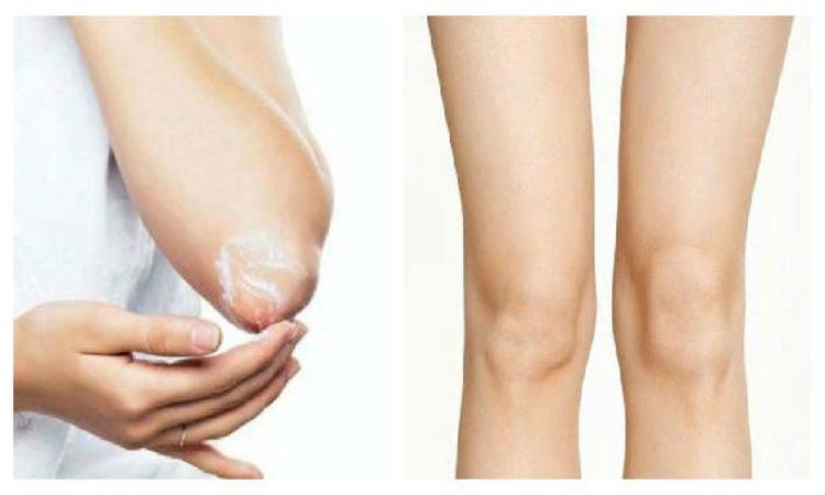 DE MUJERES  Elimina las manchas oscuras de los codos y rodillas con estos remedios