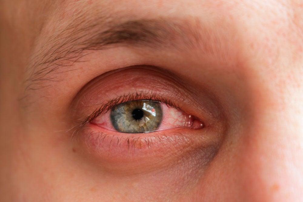 iritis síntomas y por qué ocurre