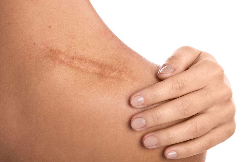 Remedios Cicatrices de piel