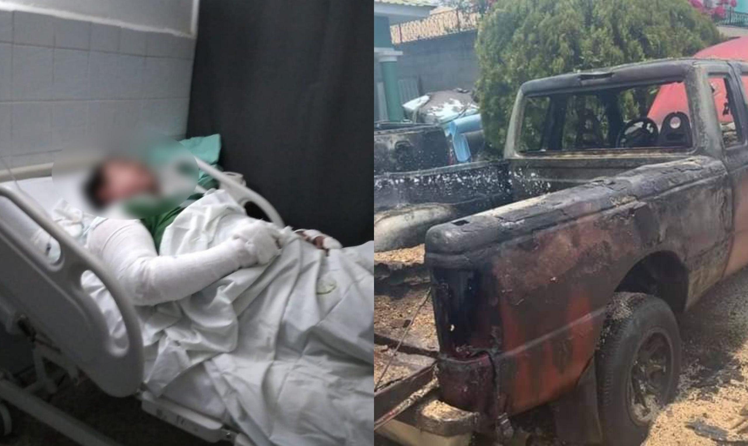 hombre se quema tras explosión de carro