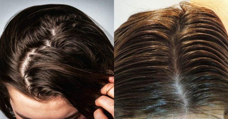 DE MUJERES| Cinco trucos para quitar la grasa del cabello sin agua