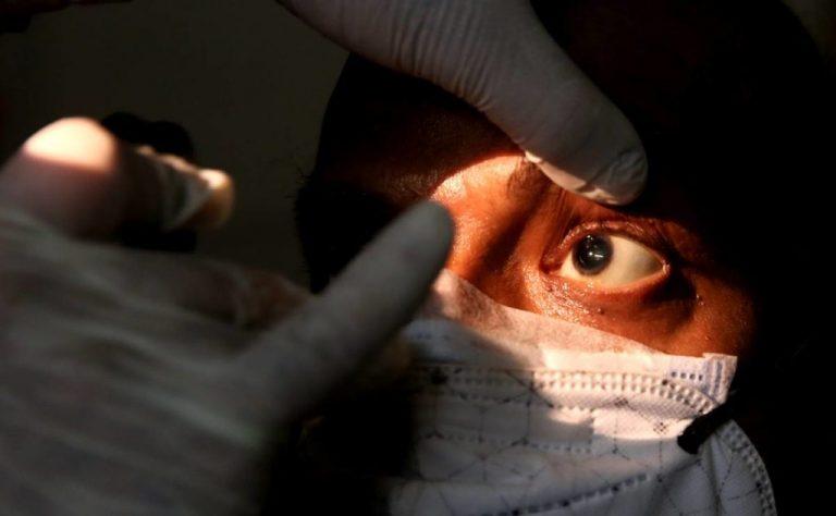Salud asegura que en Honduras se reportan 10 casos de hongo negro al año