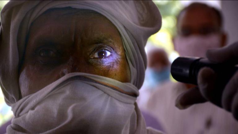 Pacientes con diabetes no controlada, las víctimas mortales de hongo negro en India