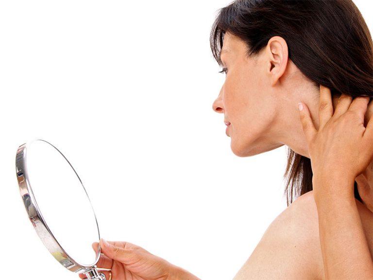 SALUD   Los problemas de tiroides podrían causarte acné, según estudios