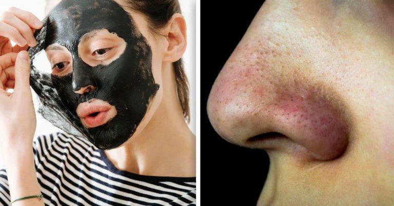 Tres mascarillas caseras para eliminar los puntos negros del rostro
