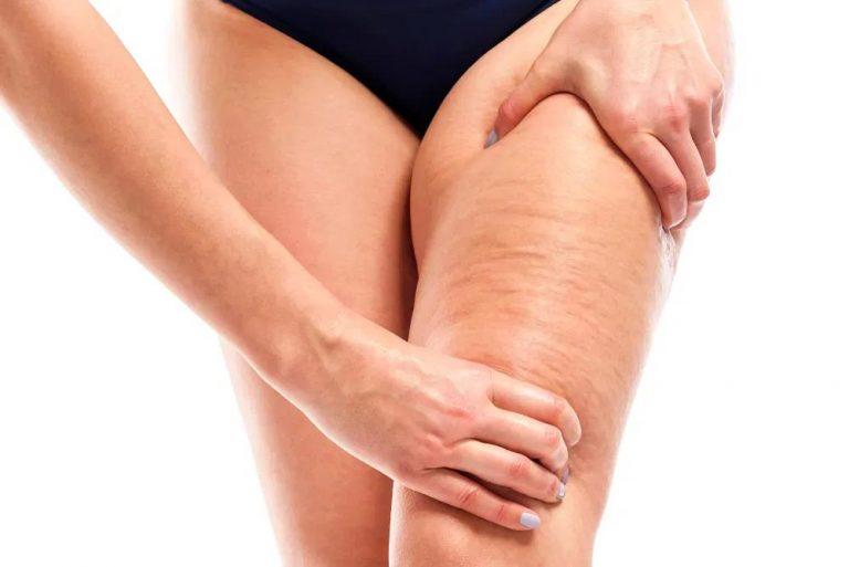 DE MUJERES| Cinco tratamientos para eliminar la celulitis y la grasa