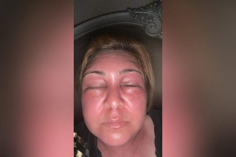 Enjambre de abejas ataca a Marlene Alvarenga, presidenta del PAC