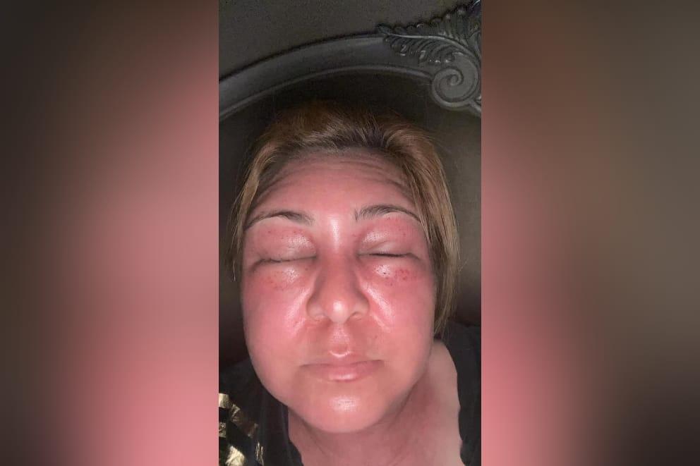 Abejas atacan Marlene Alvarenga