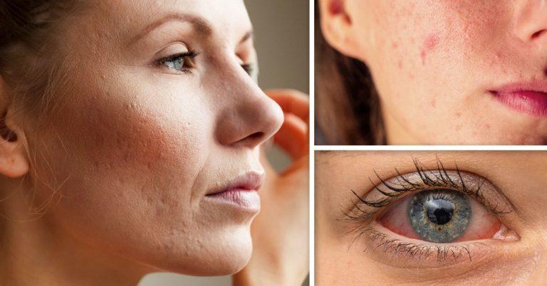 ¿Sospechas que tienes alergia al maquillaje? Estos son los 7 síntomas de alerta