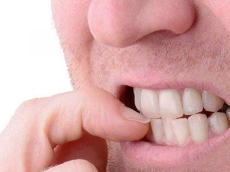 SALUD   ¿Comerse las uñas es malo? Estas siete razones te lo confirman