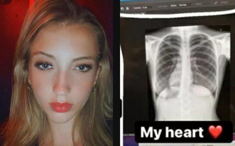 Va al médico y descubre que su corazón está en el lado derecho