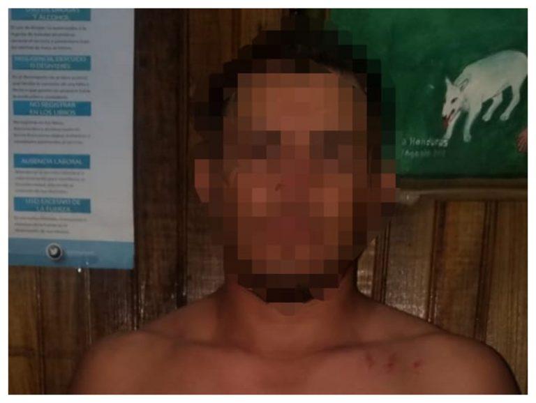 Atlántida | 18 años preso por intentar violar y matar a mujer