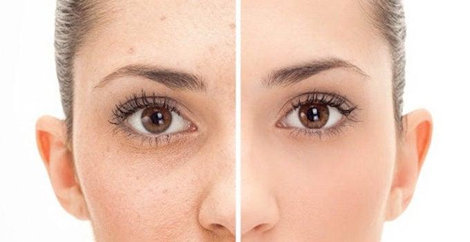 evitar manchas en la piel por el acné