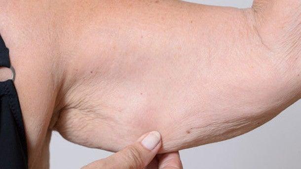 Qué es la sarcopenia, nuevo efecto asociado al COVID