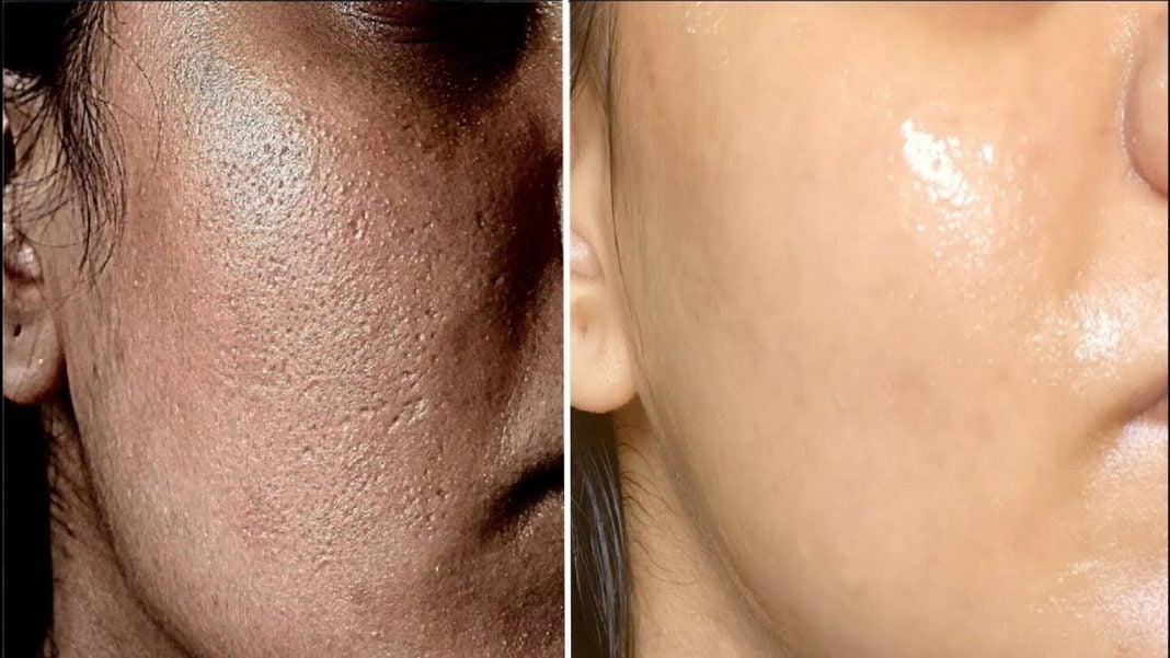 consejos para sellar poros dilatados