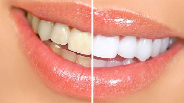 Seis hábitos cotidianos que pueden dañar tus dientes
