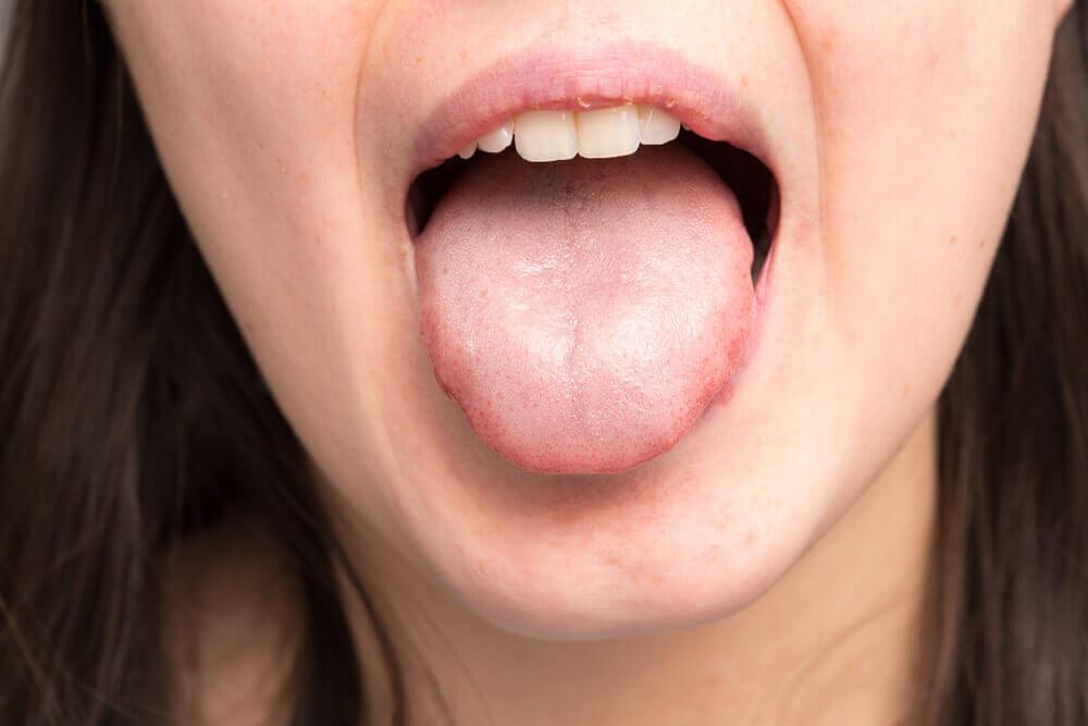 qué pasa cuando la saliva es espesa